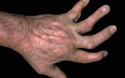 Psychiatric advice issued for psoriasis treatment