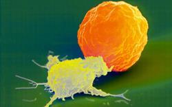 Elotuzumab: new immune-stimulating myeloma treatment