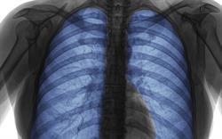 New formoterol/ beclometasone inhaler strength