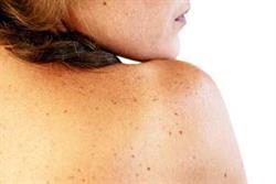 Photodamaged skin: Identifying and managing lentigines