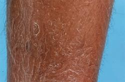 Common skin conditions in the elderly