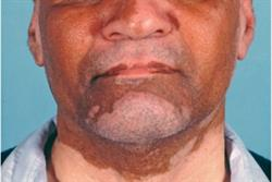 1.5 CPD credits: Managing the psychosocial impact of vitiligo