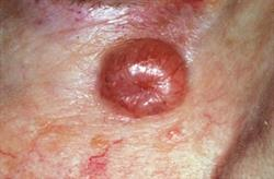 Diagnosis and treatment of basal cell carcinoma