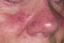 2.5 CPD credits: Clinical review: Rosacea