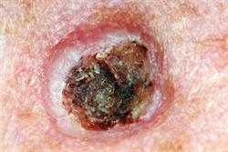 Expert Opinion: Skin cancer and the two-week wait referral