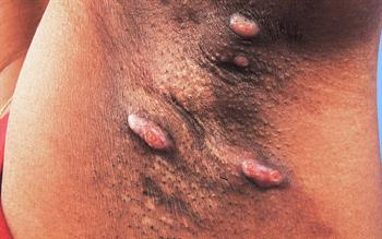 Hidradenitis suppurativa treatment accepted for NHS use