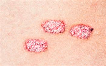 New vitamin D/steroid combination foam for psoriasis