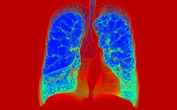 Oral COPD treatment approved for routine NHS use