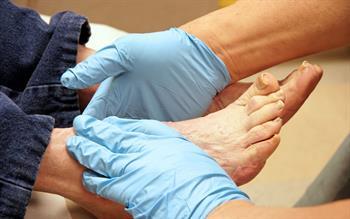 Foot care reminder for canagliflozin prescribing