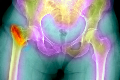 Prolia (denosumab) is also indicated for bone loss associated with hormone ablation in men with prostate cancer at increased risk of fractures | SCIENCE PHOTO LIBRARY