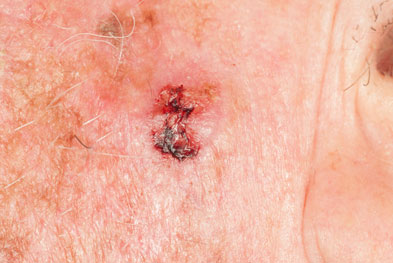 Patients may develop squamous cell carcinoma without a prior phototoxic reaction | SCIENCE PHOTO LIBRARY