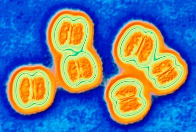Disease caused by Neisseria meningitidis serogroup B is an important unmet public health challenge   SCIENCE PHOTO LIBRARY
