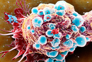 Eribulin is not recommended for the treatment of breast cancer on the NHS | SCIENCE PHOTO LIBRARY