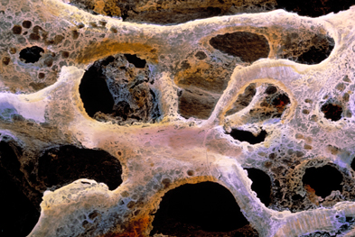Administration of parathyroid hormone in postmenopausal women with osteoporosis (pictured) has been shown to reduce the risk of fracture   SCIENCE PHOTO LIBRARY