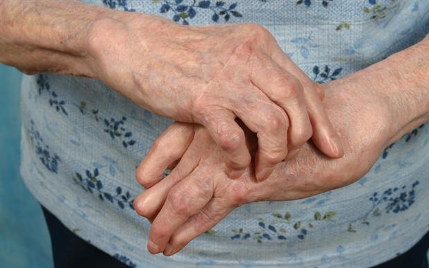 Tofacitinib reduces inflammation in patients with rheumatoid arthritis. | iStock