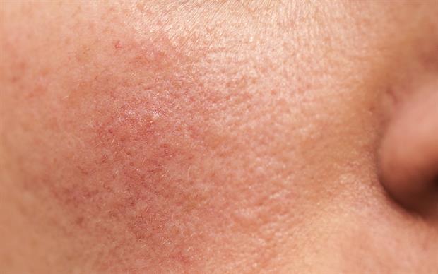 Brimonidine reduces erythema by causing cutaneous vasoconstriction. | iSTOCK