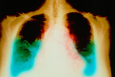 RAS-blocking agents are used to treat hypertension and congestive heart failure (pictured). | SCIENCE PHOTO LIBRARY